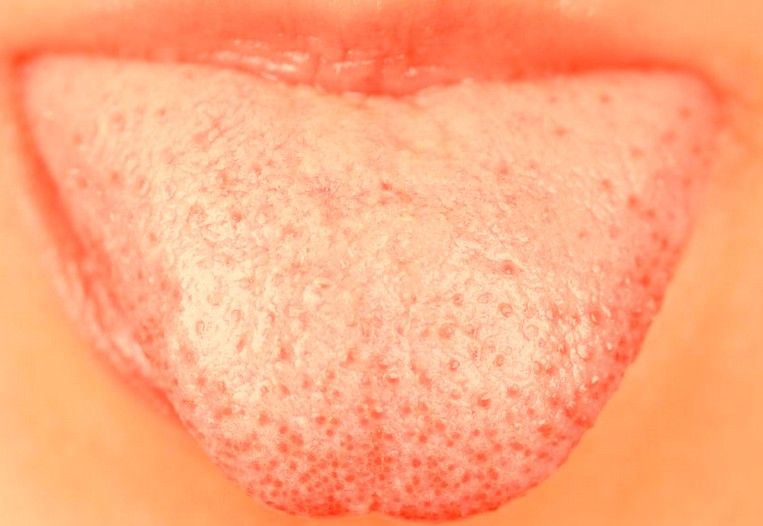pink spot on tongue