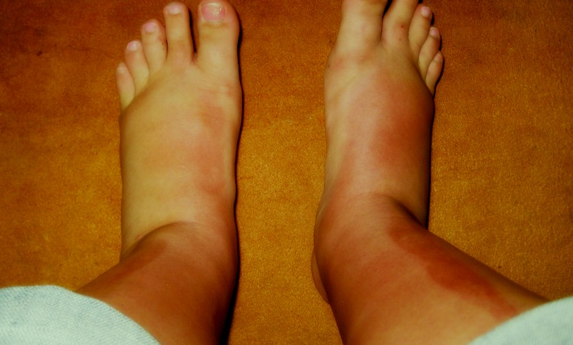 Sun Poisoning Pictures Rash Symptoms Causes Treatment