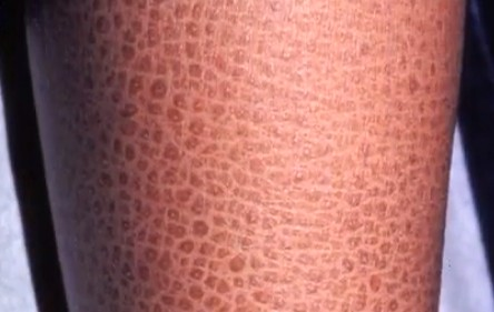 Harlequin Ichthyosis Pictures Survivors Causes Treatment