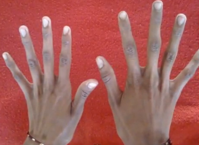 Marfan Syndrome hands pictures