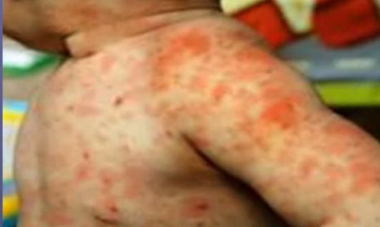Lamotrigine Rash Mild