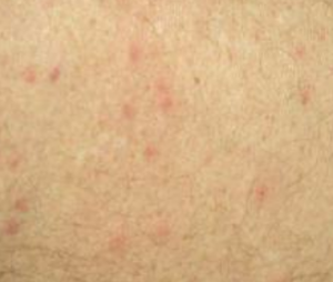 chlorine rash pictures symptoms causes treatment