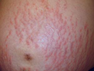 how to get rid of hot tub rash