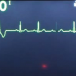 Nonsustained ventricular tachycardia