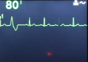 Non-sustained ventricular tachycardia
