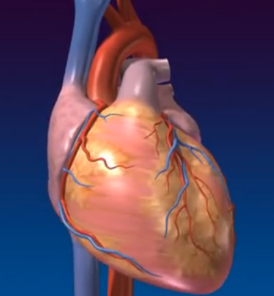 congestive heart failure pictures