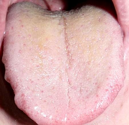 Mono rash pictures treatment symptoms causes for Allergic reaction to hot tub