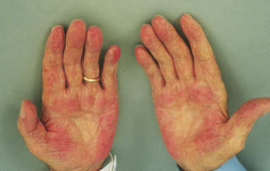 Red Palms Causes Symptoms Treatment Pictures